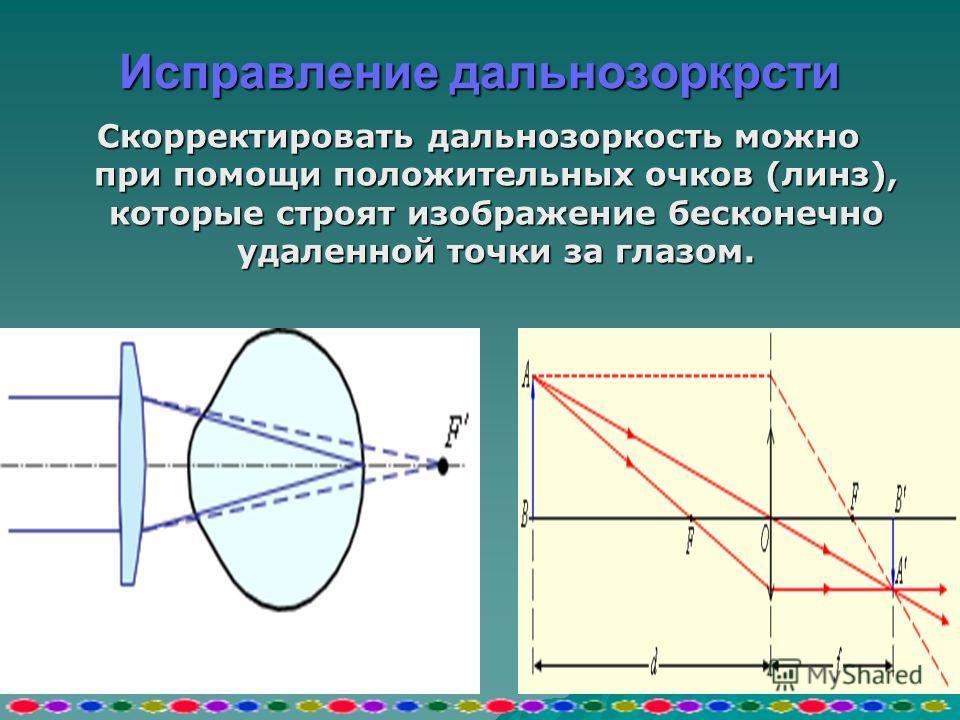 исправлении близорукости исправлении близорукости Для исправления близорукости используются отрицательные очки (линзы), которые строят изображение бесконечно удаленной точки перед глазом.