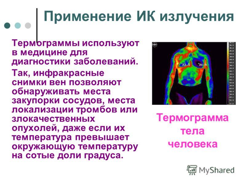 Применение ИК излучения Термограммы используют в медицине для диагностики заболеваний. Так, инфракрасные снимки вен позволяют обнаруживать места закупорки сосудов, места локализации тромбов или злокачественных опухолей, даже если их температура превы