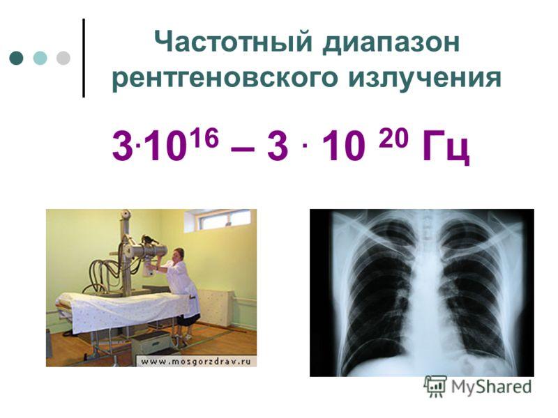 Частотный диапазон рентгеновского излучения 3. 10 16 – 3. 10 20 Гц