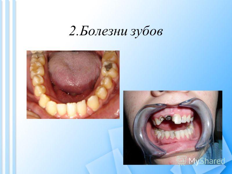 2.Болезни зубов