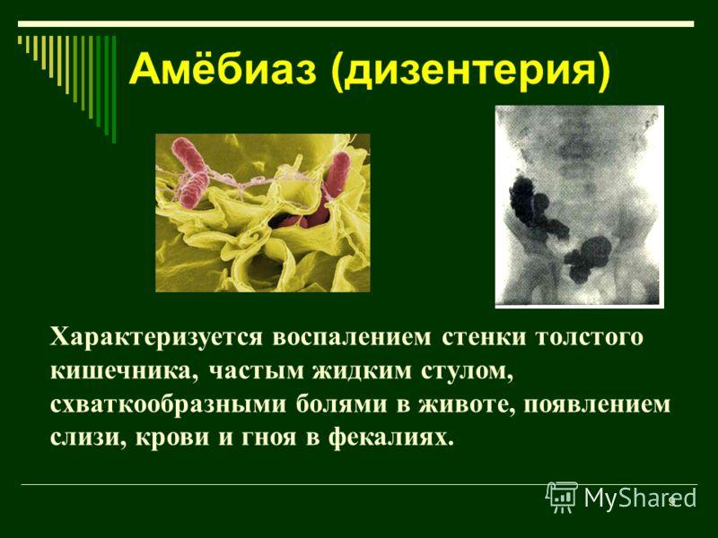9 Характеризуется воспалением стенки толстого кишечника, частым жидким стулом, схваткообразными болями в животе, появлением слизи, крови и гноя в фекалиях. Амёбиаз (дизентерия)