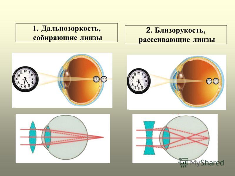 Сажают ли линзы зрение 63
