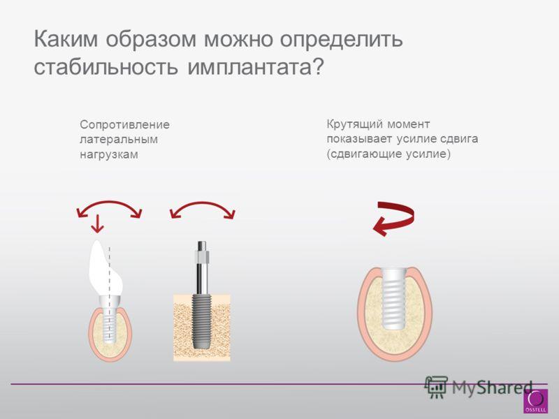 Каким образом можно определить стабильность имплантата? Сопротивление латеральным нагрузкам Крутящий момент показывает усилие сдвига (сдвигающие усилие)