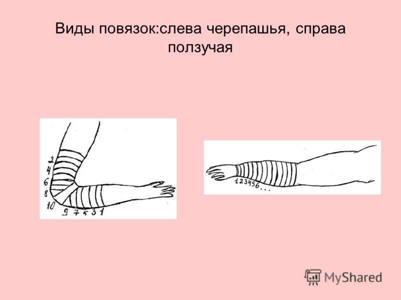 Виды повязок:слева черепашья, справа ползучая