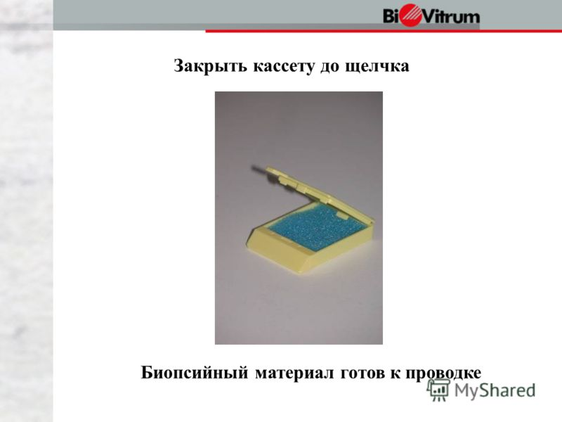 Закрыть кассету до щелчка Биопсийный материал готов к проводке