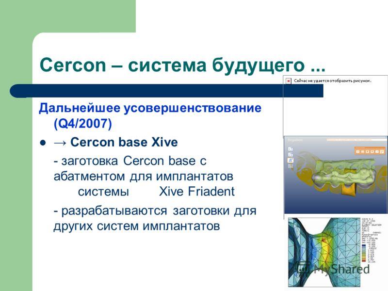 Cercon – система будущего... Дальнейшее усовершенствование (Q4/2007) Cercon base Xive - заготовка Cercon base с абатментом для имплантатов системы Xive Friadent - разрабатываются заготовки для других систем имплантатов