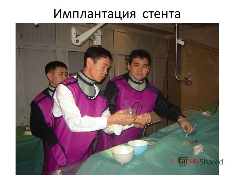 Имплантация стента