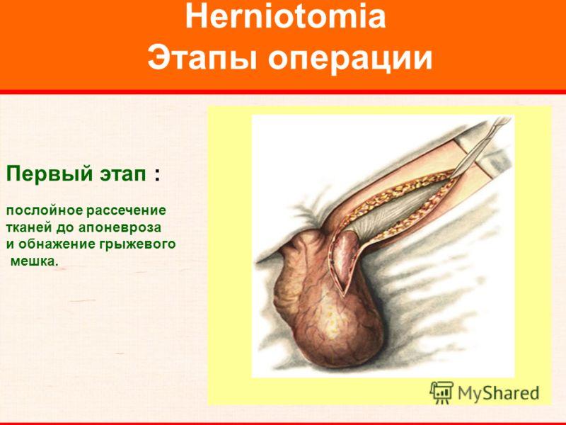 Herniotomia Этапы операции Первый этап : послойное рассечение тканей до апоневроза и обнажение грыжевого мешка.