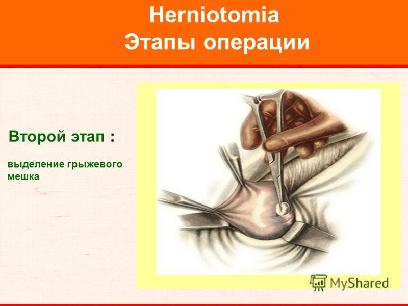 Herniotomia Этапы операции Второй этап : выделение грыжевого мешка