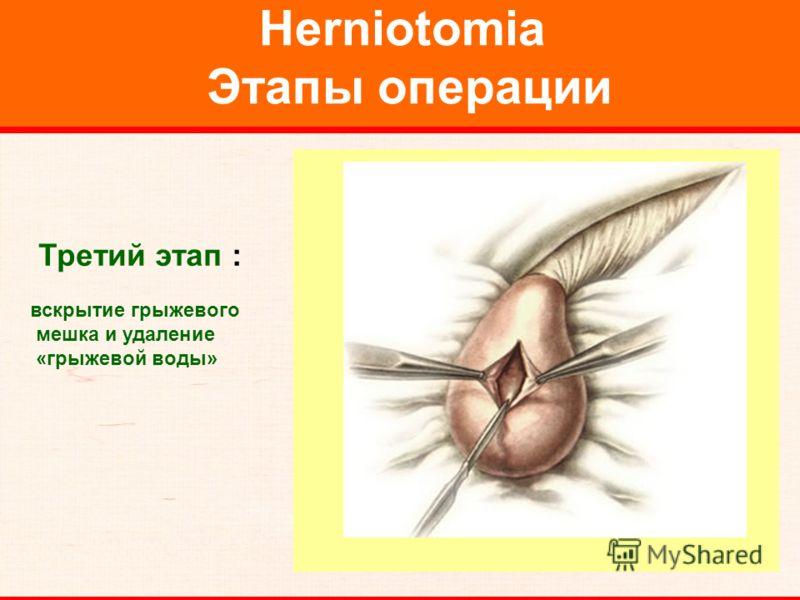Herniotomia Этапы операции Третий этап : вскрытие грыжевого мешка и удаление «грыжевой воды»