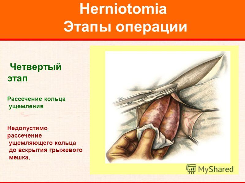 Herniotomia Этапы операции Четвертый этап Рассечение кольца ущемления Недопустимо рассечение ущемляющего кольца до вскрытия грыжевого мешка,