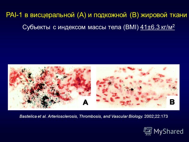 PAI-1 в висцеральной (A) и подкожной (B) жировой ткани Субъекты с индексом массы тела (BMI) 41±6.3 кг/м 2 Bastelica et al. Arteriosclerosis, Thrombosis, and Vascular Biology. 2002;22:173