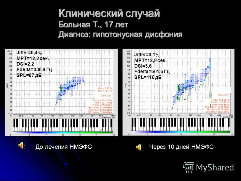 Клинический случай Больная Т., 17 лет Диагноз: гипотонусная дисфония До лечения НМЭФСЧерез 10 дней НМЭФС Jitter=0,4% MPT=12,2 сек. DSI=2,2 Fdelta=336,9 Гц SPL=87 дБ Jitter=0,1% MPT=18,9 сек. DSI=3,6 Fdelta=601,6 Гц SPL=110 дБ