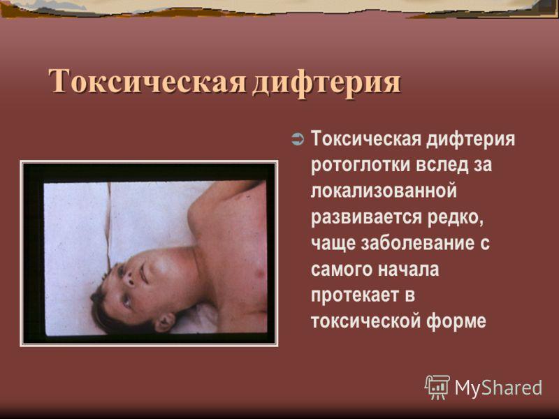 Токсическая дифтерия Токсическая дифтерия ротоглотки вслед за локализованной развивается редко, чаще заболевание с самого начала протекает в токсической форме