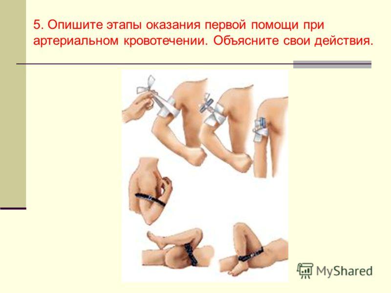 5. Опишите этапы оказания первой помощи при артериальном кровотечении. Объясните свои действия.