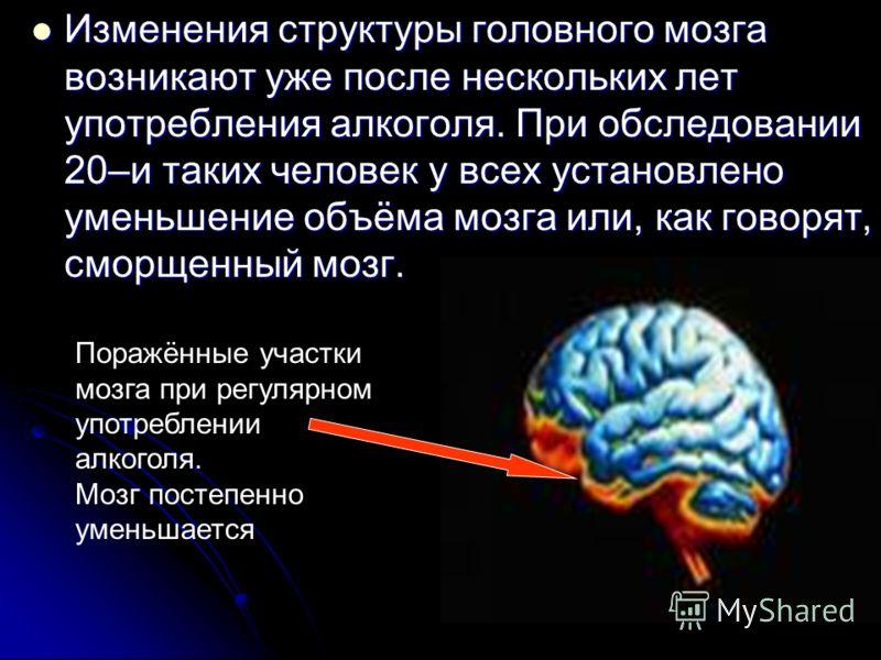 Изменения структуры головного мозга возникают уже после нескольких лет употребления алкоголя. При обследовании 20–и таких человек у всех установлено уменьшение объёма мозга или, как говорят, сморщенный мозг. Изменения структуры головного мозга возник