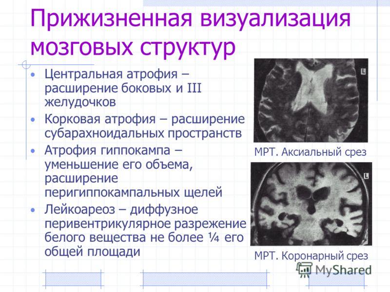 Прижизненная визуализация мозговых структур Центральная атрофия – расширение боковых и III желудочков Корковая атрофия – расширение субарахноидальных пространств Атрофия гиппокампа – уменьшение его объема, расширение перигиппокампальных щелей Лейкоар