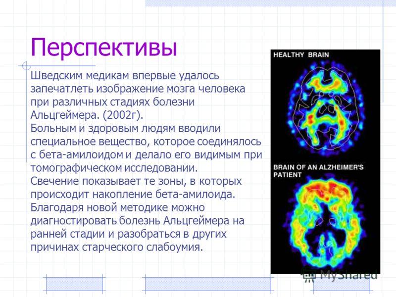 Перспективы Шведским медикам впервые удалось запечатлеть изображение мозга человека при различных стадиях болезни Альцгеймера. (2002г). Больным и здоровым людям вводили специальное вещество, которое соединялось с бета-амилоидом и делало его видимым п