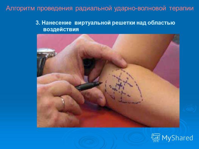 3. Нанесение виртуальной решетки над областью воздействия Алгоритм проведения радиальной ударно-волновой терапии