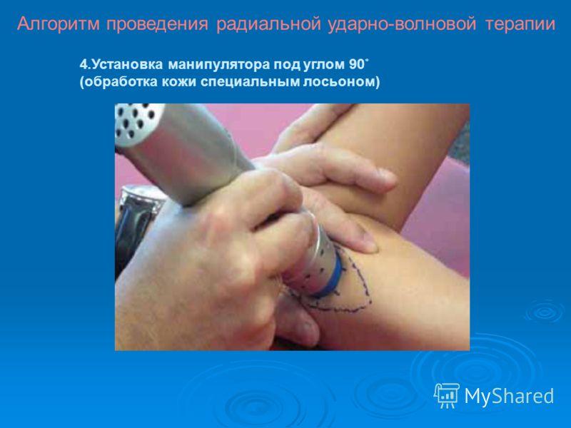 4.Установка манипулятора под углом 90˚ (обработка кожи специальным лосьоном) Алгоритм проведения радиальной ударно-волновой терапии