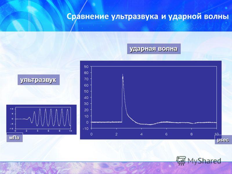 Сравнение ультразвука и ударной волны ударная волна µsec ультразвук мПа