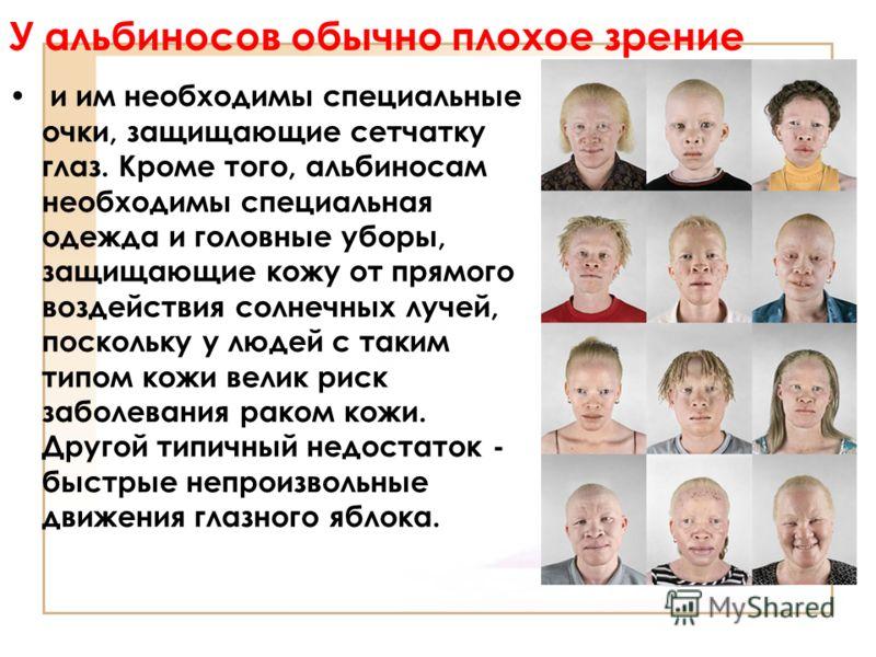 У альбиносов обычно плохое зрение и им необходимы специальные очки, защищающие сетчатку глаз. Кроме того, альбиносам необходимы специальная одежда и головные уборы, защищающие кожу от прямого воздействия солнечных лучей, поскольку у людей с таким тип