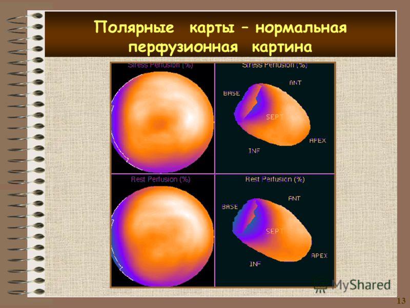 Полярные карты – нормальная перфузионная картина 13