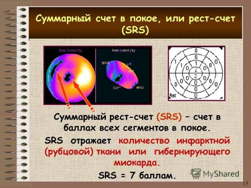Суммарный счет в покое, или рест-счет (SRS) Суммарный рест-счет (SRS) – счет в баллах всех сегментов в покое. SRS отражает количество инфарктной (рубцовой) ткани или гибернирующего миокарда. SRS = 7 баллам. 15