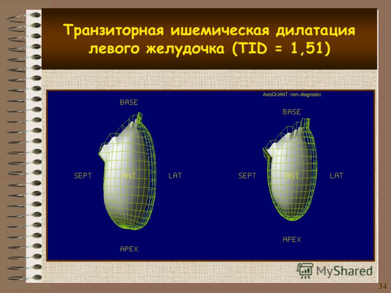 Транзиторная ишемическая дилатация левого желудочка (TID = 1,51) 3434