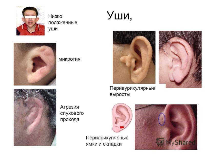 Уши, микротия Периаурикулярные выросты Атрезия слухового прохода Периарикулярные ямки и складки Низко посаженные уши