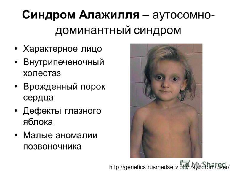 Синдром Алажилля – аутосомно- доминантный синдром Характерное лицо Внутрипеченочный холестаз Врожденный порок сердца Дефекты глазного яблока Малые аномалии позвоночника http://genetics.rusmedserv.com/syndrom/user/