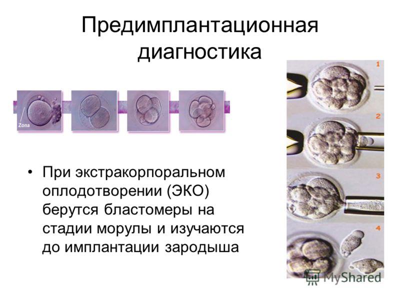 Предимплантационная диагностика При экстракорпоральном оплодотворении (ЭКО) берутся бластомеры на стадии морулы и изучаются до имплантации зародыша