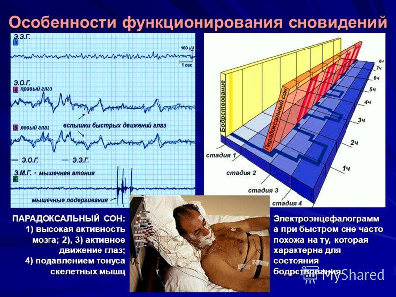 Электроэнцефалограмм а при быстром сне часто похожа на ту, которая характерна для состояния бодрствования. ПАРАДОКСАЛЬНЫЙ СОН: 1) высокая активность мозга; 2), 3) активное движение глаз; 4) подавлением тонуса скелетных мышц Особенности функционирован