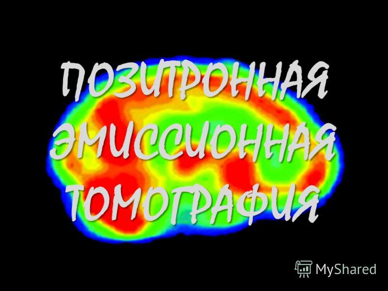 ПОЗИТРОННАЯ ЭМИССИОННАЯ ТОМОГРАФИЯ
