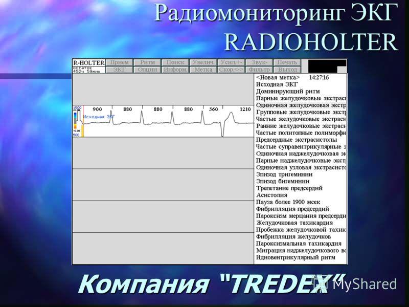 Компания TREDEX Радиомониторинг ЭКГ RADIOHOLTER