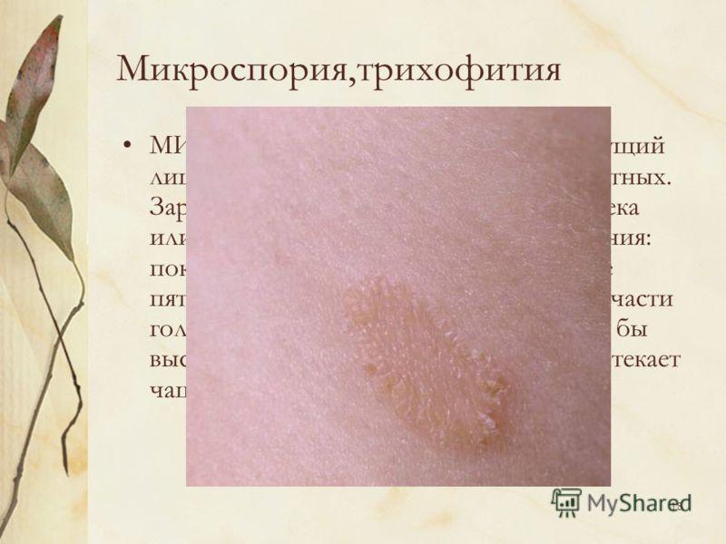 Микроспория фото