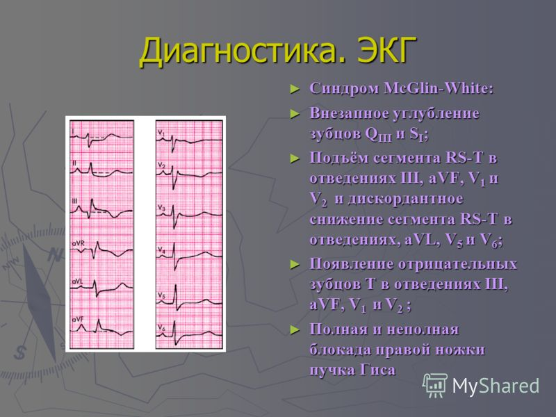 Диагностика. ЭКГ Синдром McGlin-White: Синдром McGlin-White: Внезапное углубление зубцов Q III и S I ; Внезапное углубление зубцов Q III и S I ; Подъём сегмента RS-T в отведениях III, aVF, V 1 и V 2 и дискордантное снижение сегмента RS-T в отведениях