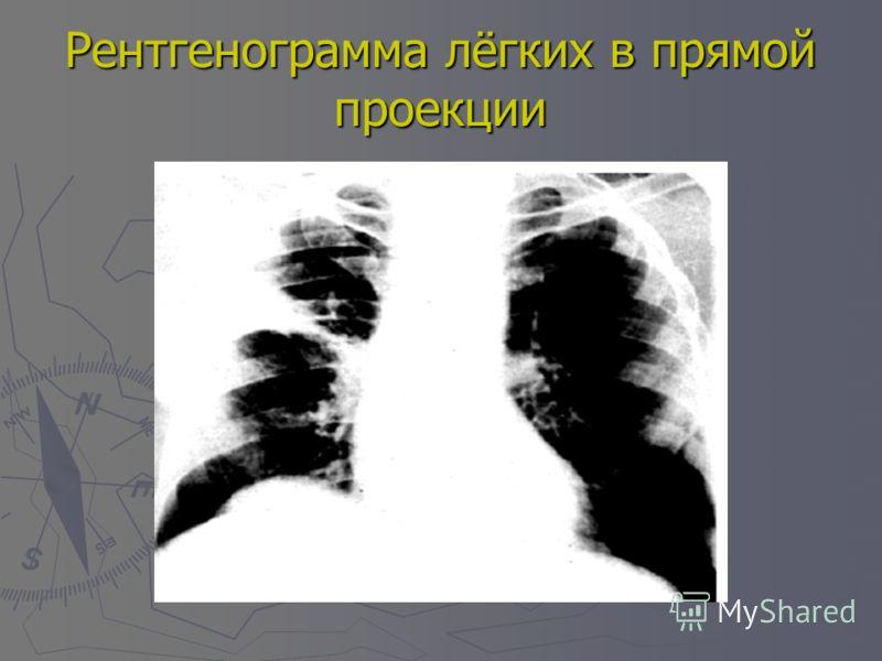 Рентгенограмма лёгких в прямой проекции