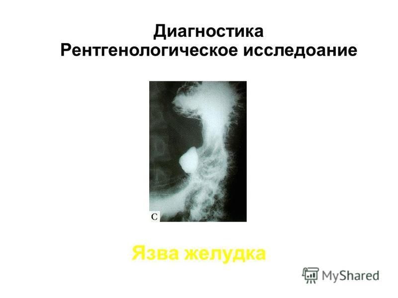 Язва желудка Диагностика Рентгенологическое исследование