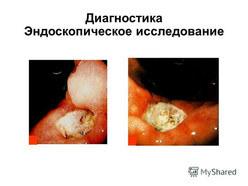 Диагностика Эндоскопическое исследование