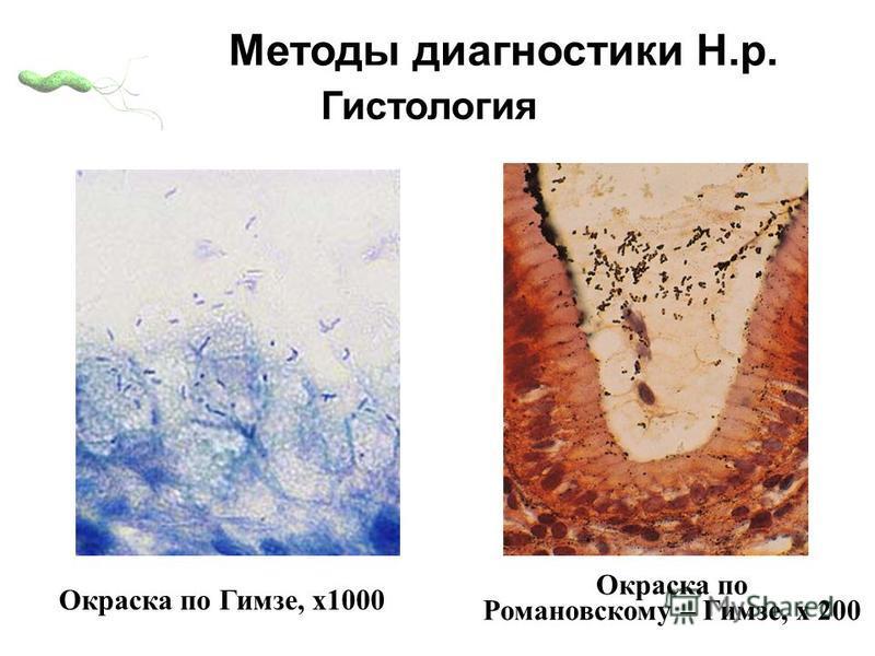 Окраска по Гимзе, х 1000 Окраска по Романовскому – Гимзе, х 200 Гистология Методы диагностики Н.р.