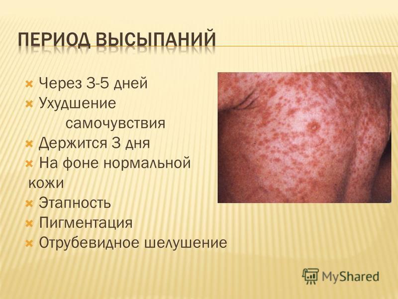 Через 3-5 дней Ухудшение самочувствия Держится 3 дня На фоне нормальной кожи Этапность Пигментация Отрубевидное шелушение