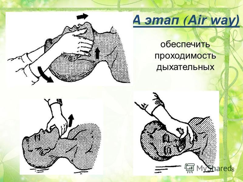 Основные этапы реанимации A этап ( Air way) - обеспечить проходимость дыхательных путей (предупредить западение языка, возможна также интубация трахеи). B этап (Breathing) - перейти на искусственную вентиляцию легких. C этап (Circulation) - восстанов