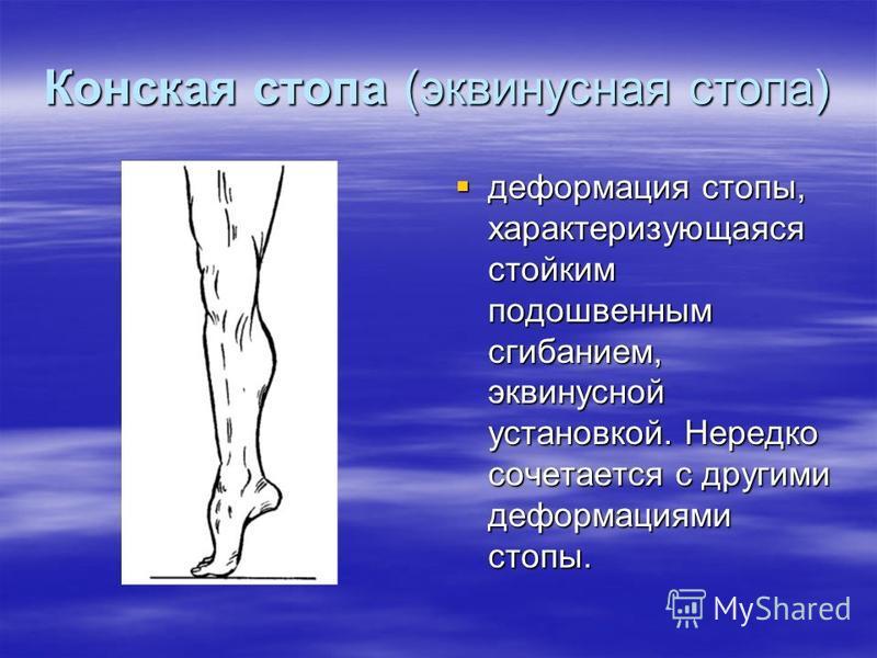Конская стопа (эквинусная стопа) деформация стопы, характеризующаяся стойким подошвенным сгибанием, эквинусной установкой. Нередко сочетается с другими деформациями стопы. деформация стопы, характеризующаяся стойким подошвенным сгибанием, эквинусной