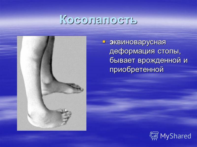 Косолапость эквиноварусная деформация стопы, бывает врожденной и приобретенной эквиноварусная деформация стопы, бывает врожденной и приобретенной