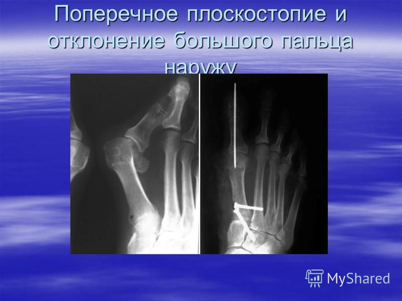 Поперечное плоскостопие и отклонение большого пальца наружу