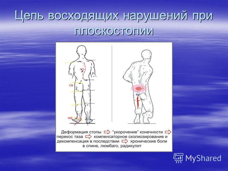 Цепь восходящих нарушений при плоскостопии