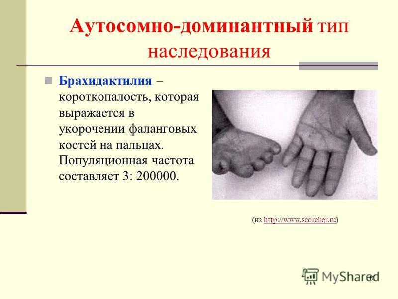 Аутосомно-доминантный тип наследования Брахидактилия – короткопалость, которая выражается в укорочении фаланговых костей на пальцах. Популяционная частота составляет 3: 200000. (из http://www.scorcher.ru)http://www.scorcher.ru 19