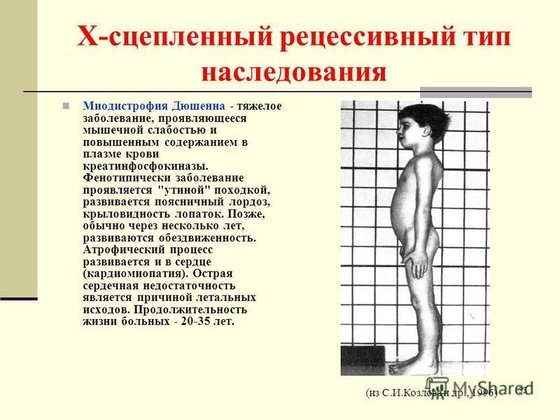 Х-сцепленный рецессивный тип наследования Миодистрофия Дюшенна - тяжелое заболевание, проявляющееся мышечной слабостью и повышенным содержанием в плазме крови креатинфосфокиназы. Фенотипически заболевание проявляется