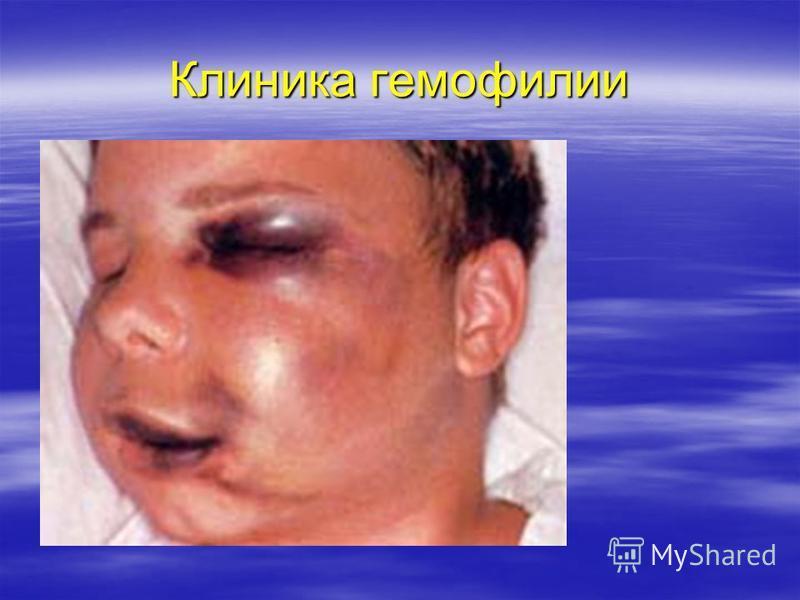Клиника гемофилии